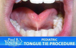tongue tie   Buffalo NY