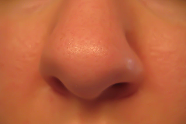 You Don't Have to Suffer with Nasal Polyps!