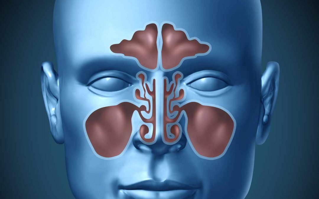 The ENT May Not Be Able to Cure Your Sinus Infection
